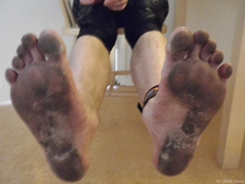 what 10K does to your bare soles